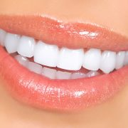 Dental Veneers farnborough