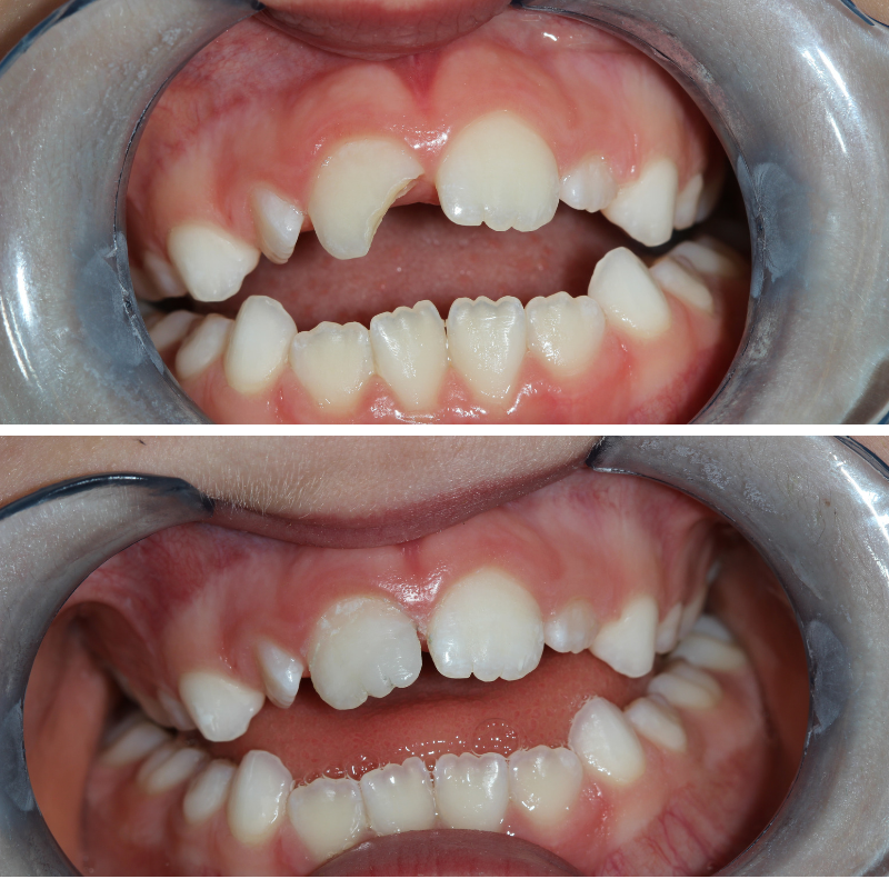 composite white fillings